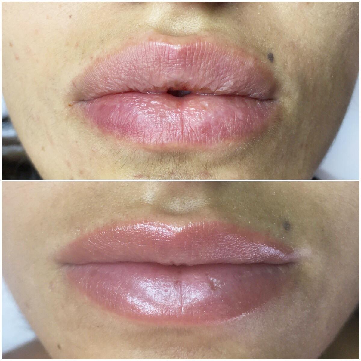 trucco permanente labbra